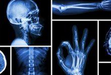 رادیولوژی در شیراز