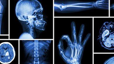 تصویر مراکز رادیولوژی در شیراز -آدرس و تلفن